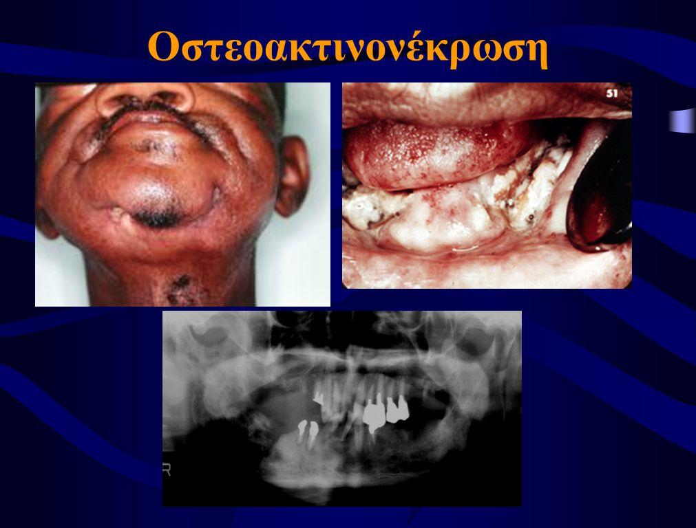 Οστεοακτινονέκρωση