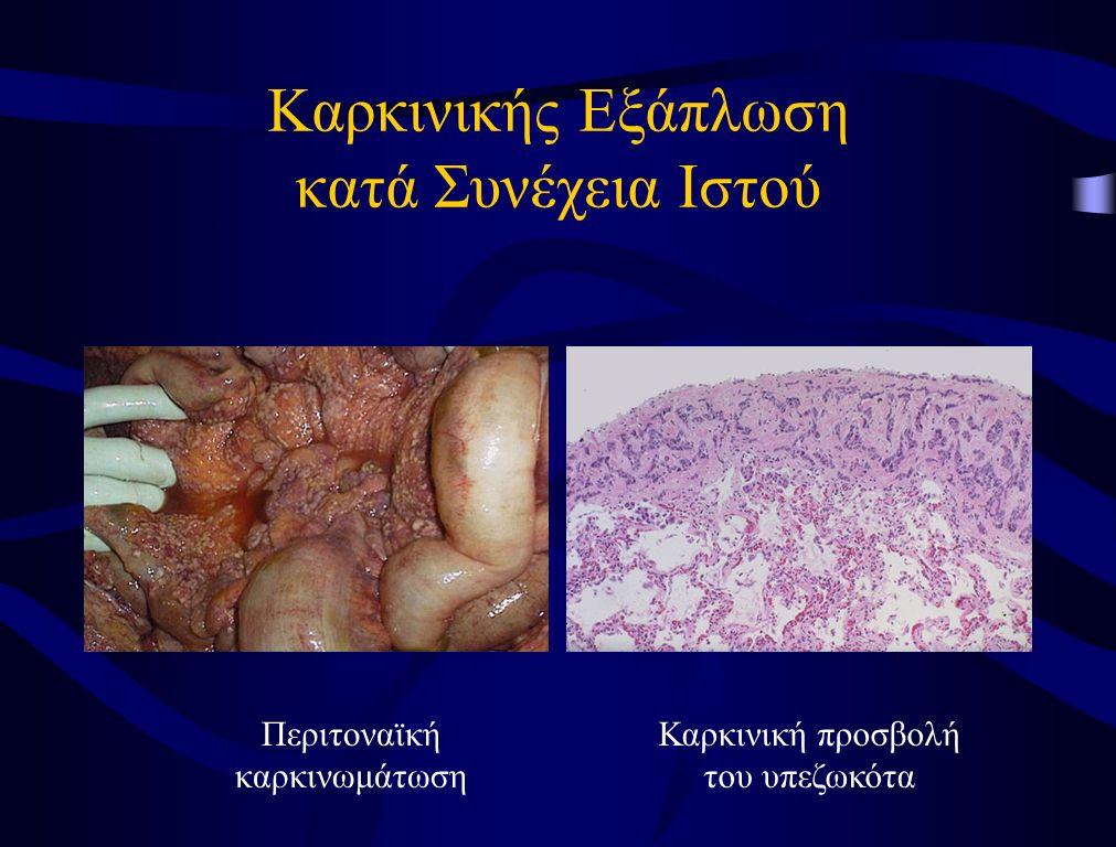 Καρκινικής Εξάπλωση κατά Συνέχεια Ιστού