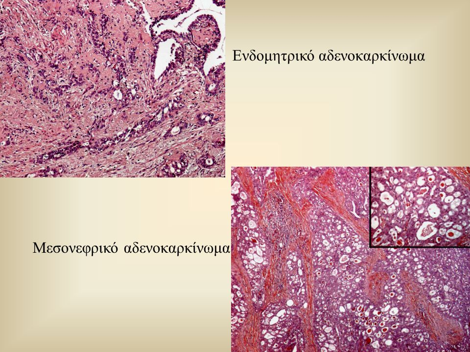 Ενδομητρικό αδενοκαρκίνωμα