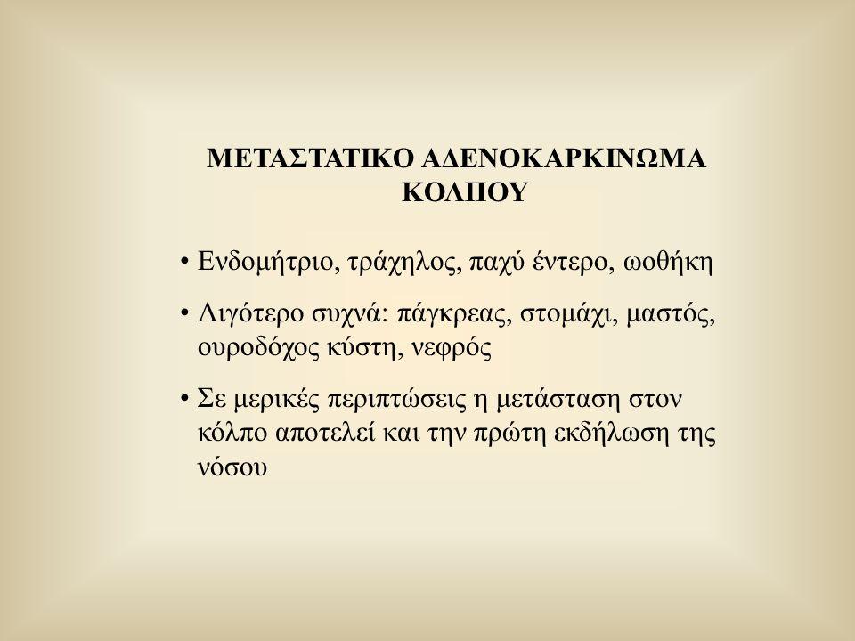 ΜΕΤΑΣΤΑΤΙΚΟ ΑΔΕΝΟΚΑΡΚΙΝΩΜΑ ΚΟΛΠΟΥ