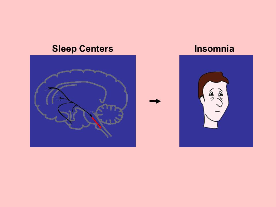 Sleep Centers Insomnia