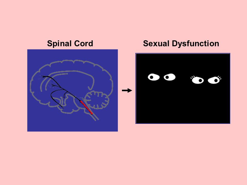 Spinal Cord Sexual Dysfunction