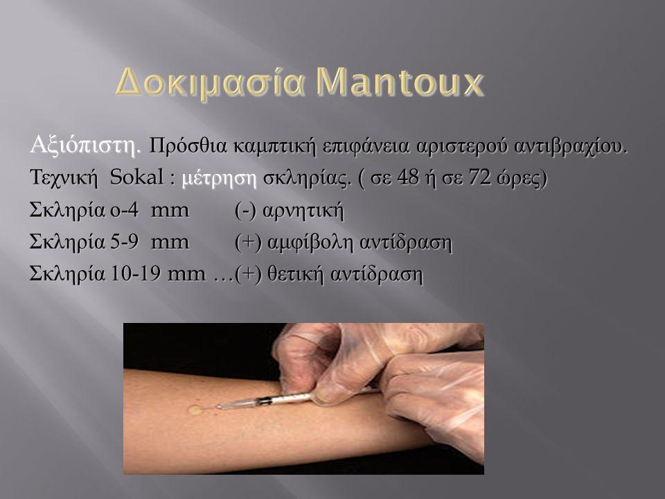 Δοκιμασία Mantoux Αξιόπιστη. Πρόσθια καμπτική επιφάνεια αριστερού αντιβραχίου. Τεχνική Sokal : μέτρηση σκληρίας. ( σε 48 ή σε 72 ώρες)