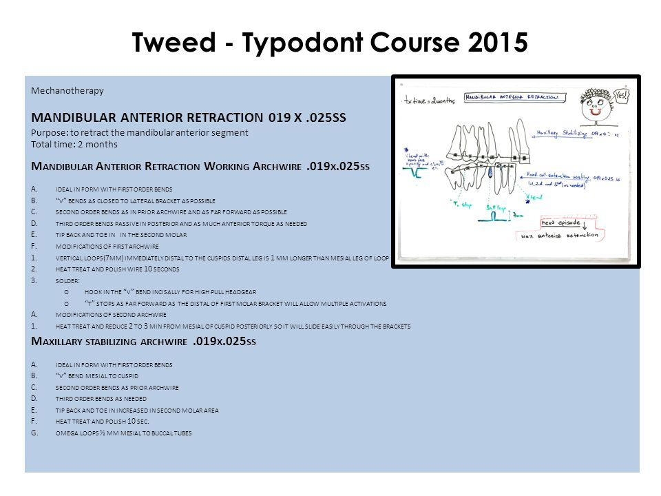 Tweed - Typodont Course 2015