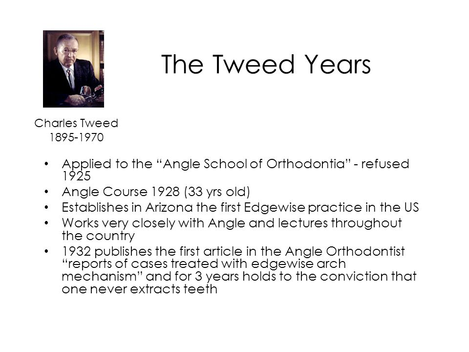 The Tweed Years Charles Tweed. 1895-1970. Applied to the Angle School of Orthodontia - refused 1925.