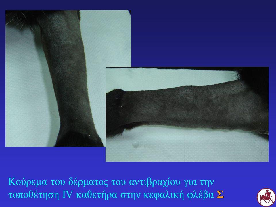 Κούρεμα του δέρματος του αντιβραχίου για την τοποθέτηση IV καθετήρα στην κεφαλική φλέβα Σ