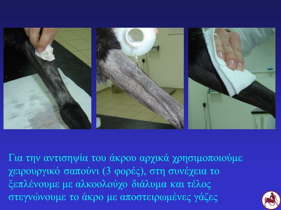 Για την αντισηψία του άκρου αρχικά χρησιμοποιούμε χειρουργικό σαπούνι (3 φορές), στη συνέχεια το ξεπλένουμε με αλκοολούχο διάλυμα και τέλος στεγνώνουμε το άκρο με αποστειρωμένες γάζες