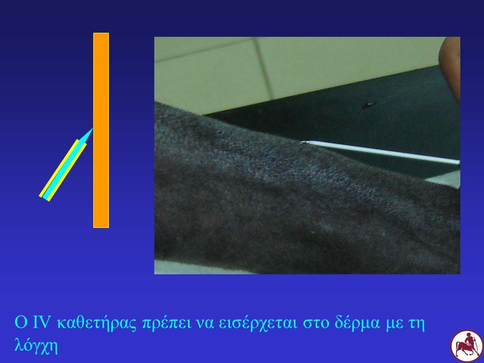 Ο IV καθετήρας πρέπει να εισέρχεται στο δέρμα με τη λόγχη