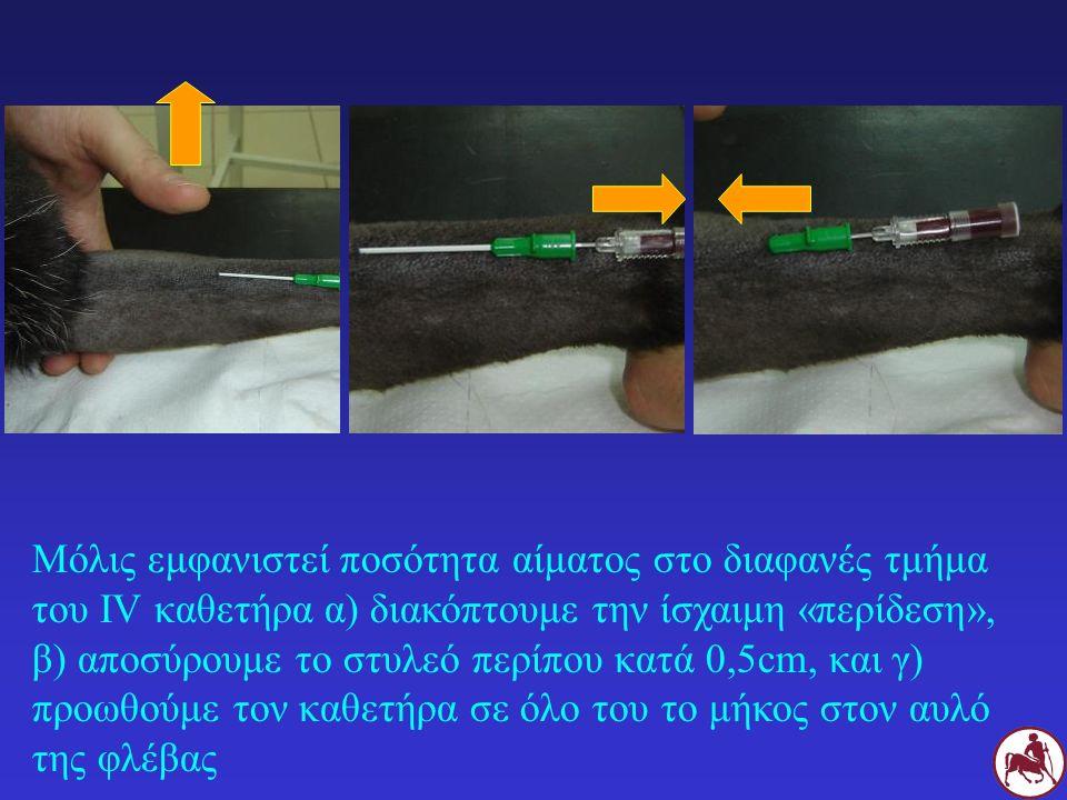 Μόλις εμφανιστεί ποσότητα αίματος στο διαφανές τμήμα του IV καθετήρα α) διακόπτουμε την ίσχαιμη «περίδεση», β) αποσύρουμε το στυλεό περίπου κατά 0,5cm, και γ) προωθούμε τον καθετήρα σε όλο του το μήκος στον αυλό της φλέβας