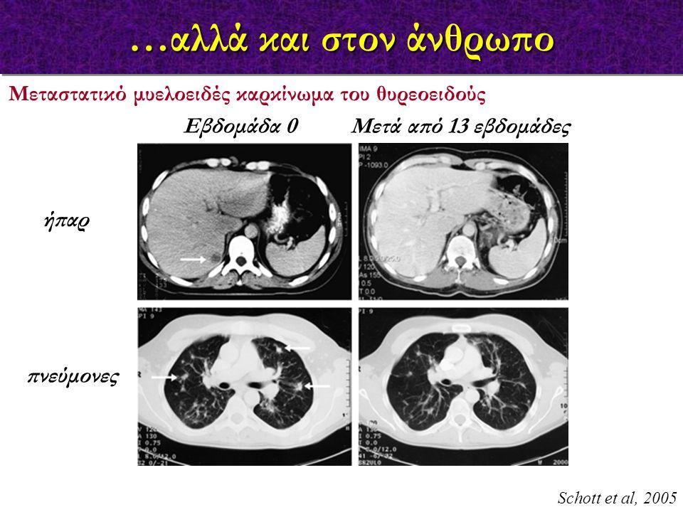 …αλλά και στον άνθρωπο Μεταστατικό μυελοειδές καρκίνωμα του θυρεοειδούς. Εβδομάδα 0. Μετά από 13 εβδομάδες.