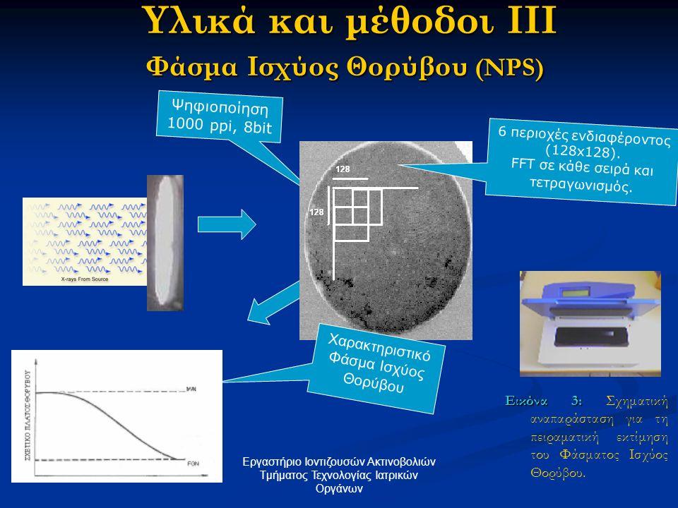 Υλικά και μέθοδοι ΙΙΙ Φάσμα Ισχύος Θορύβου (NPS)