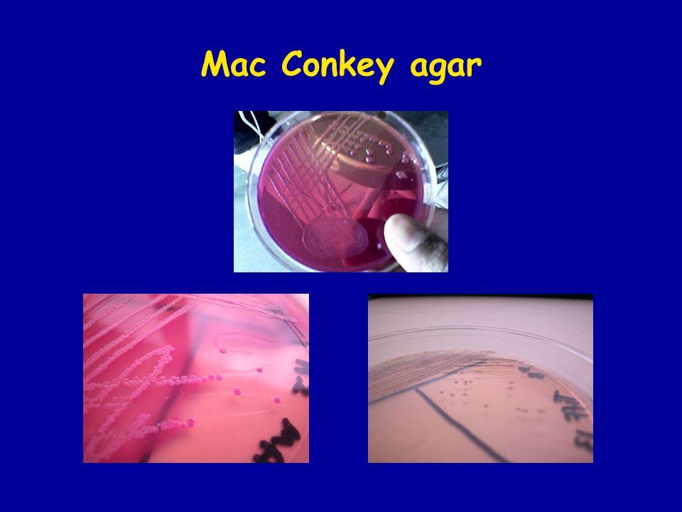 Mac Conkey agar