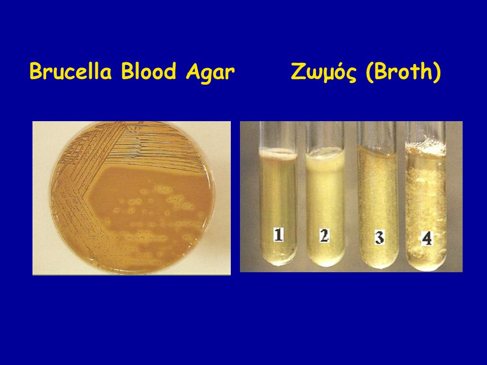 Brucella Blood Agar Ζωμός (Broth)