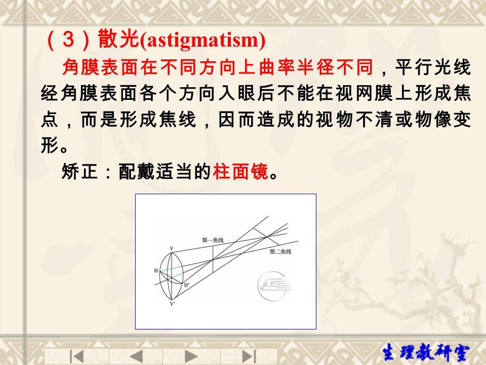 (3)散光(astigmatism) 角膜表面在不同方向上曲率半径不同,平行光线经角膜表面各个方向入眼后不能在视网膜上形成焦点,而是形成焦线,因而造成的视物不清或物像变形。 矫正:配戴适当的柱面镜。