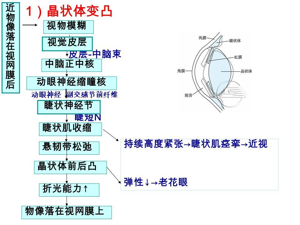 1)晶状体变凸 调节前后晶状体的变化 近 物 像 落 视物模糊 在 视 网 膜 视觉皮层 后 皮层-中脑束 中脑正中核 动眼神经缩瞳核