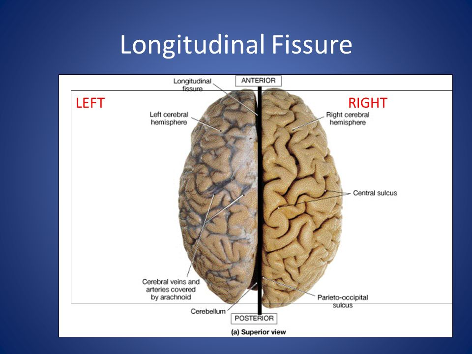 Longitudinal Fissure LEFT RIGHT
