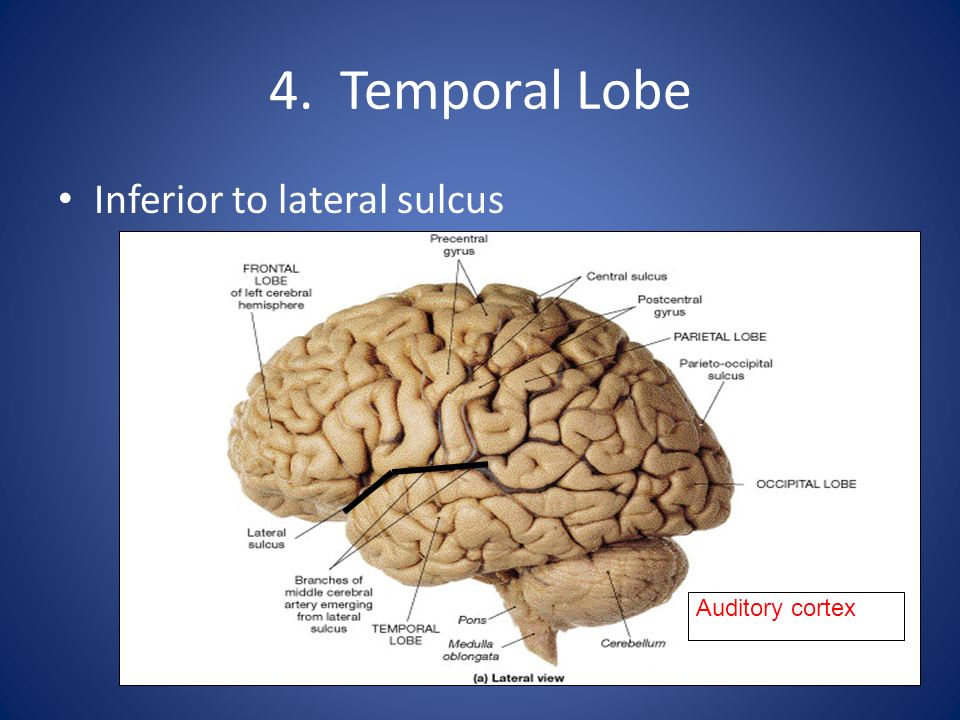 4. Temporal Lobe Inferior to lateral sulcus Auditory cortex