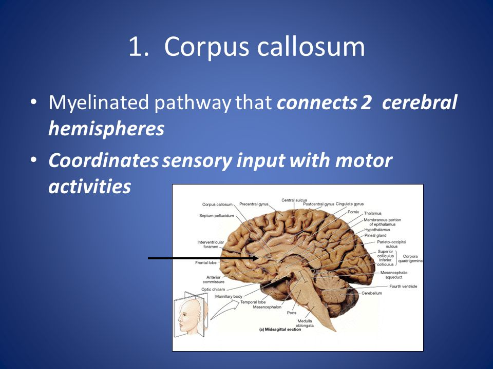 1. Corpus callosum Myelinated pathway that connects 2 cerebral hemispheres.