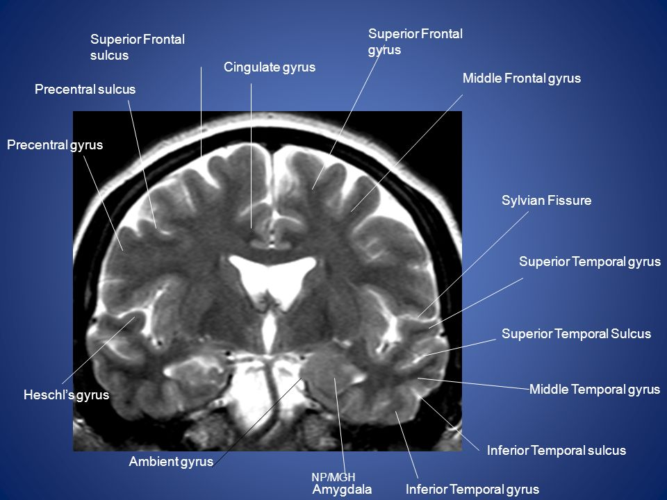 Superior Frontal gyrus Superior Frontal sulcus