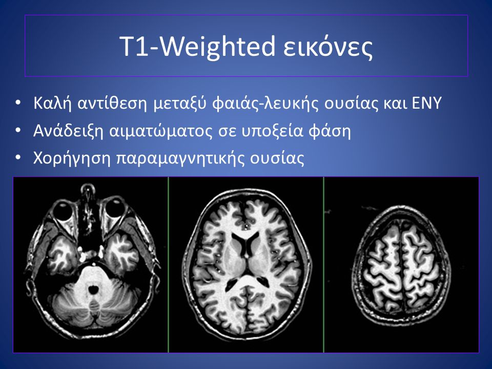 T1-Weighted εικόνες Καλή αντίθεση μεταξύ φαιάς-λευκής ουσίας και ΕΝΥ
