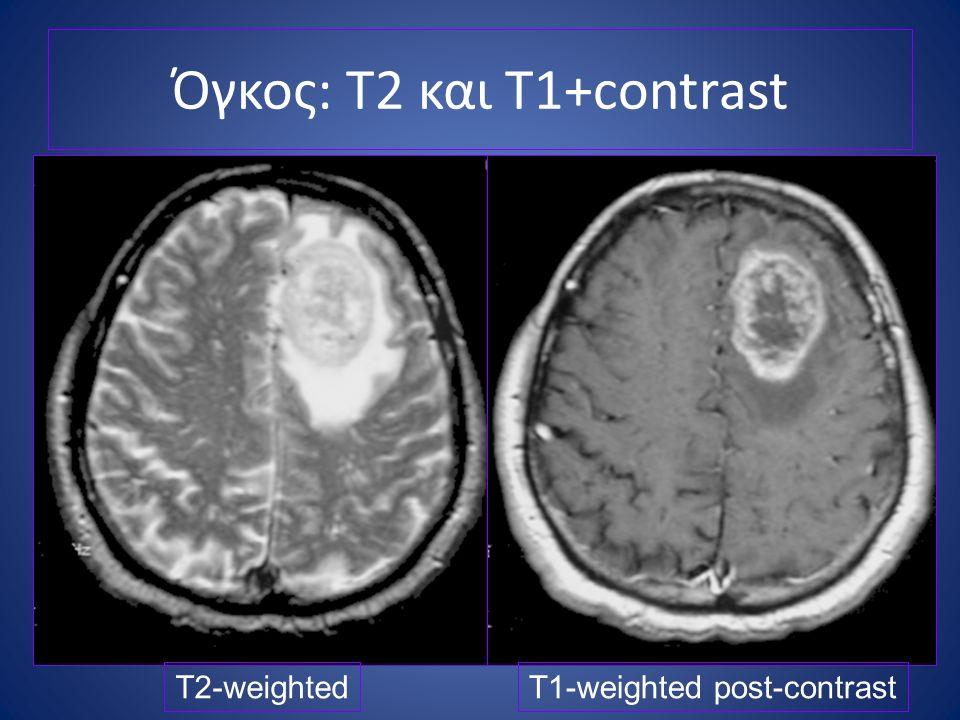 Όγκος: T2 και T1+contrast