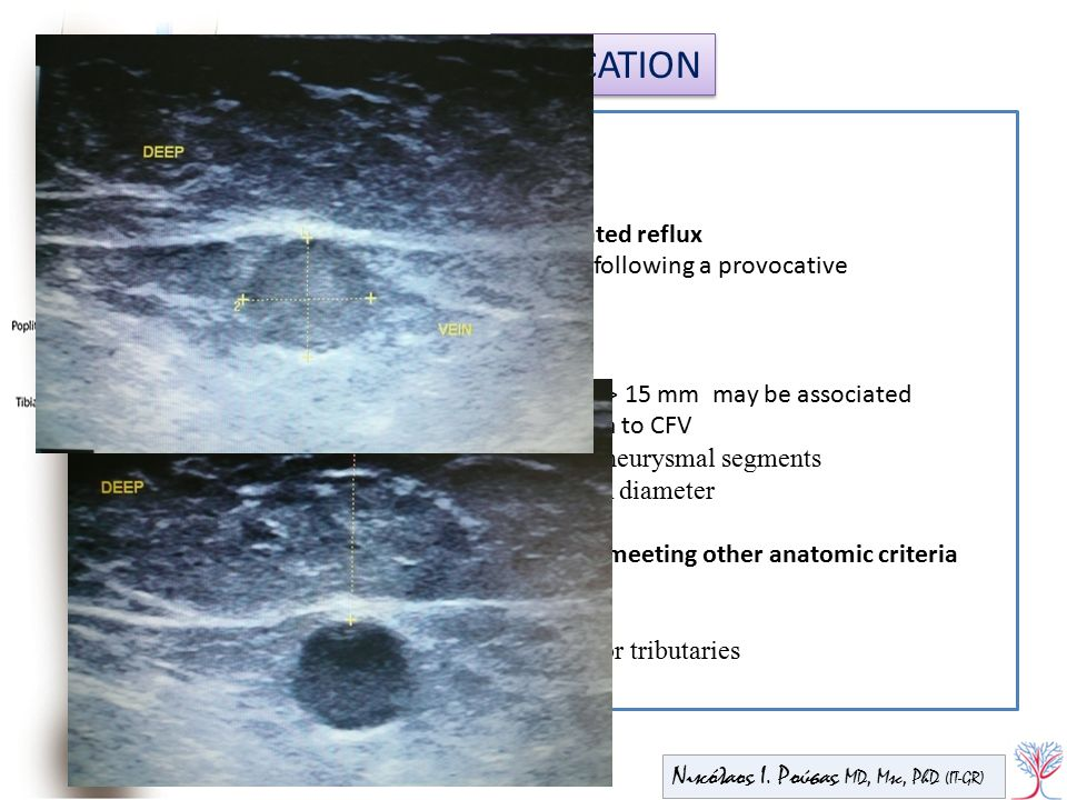 INDICATION Medical Indications for EVTA Anatomic