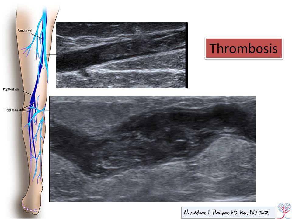 Thrombosis Νικόλαος Ι. Ρούσας MD, Msc, PhD (IT-GR)