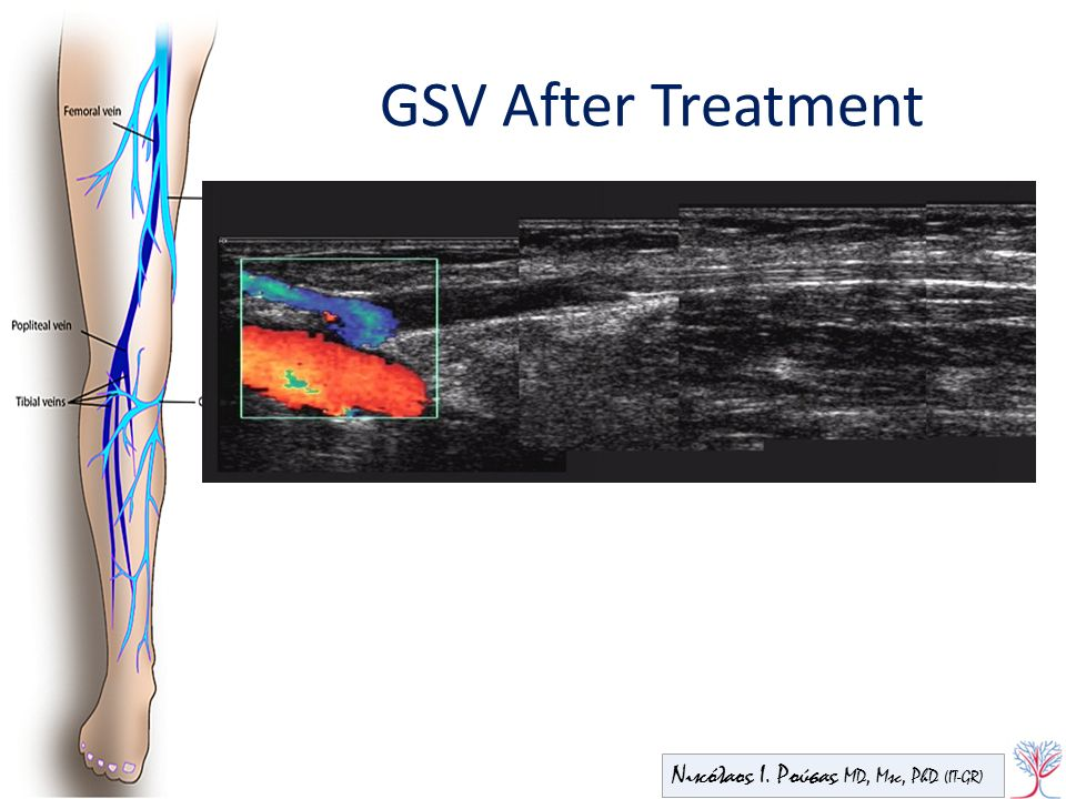 GSV After Treatment Νικόλαος Ι. Ρούσας MD, Msc, PhD (IT-GR)