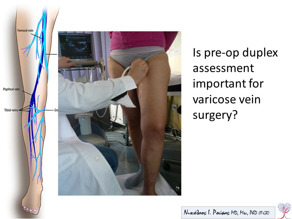 Is pre-op duplex assessment important for varicose vein surgery