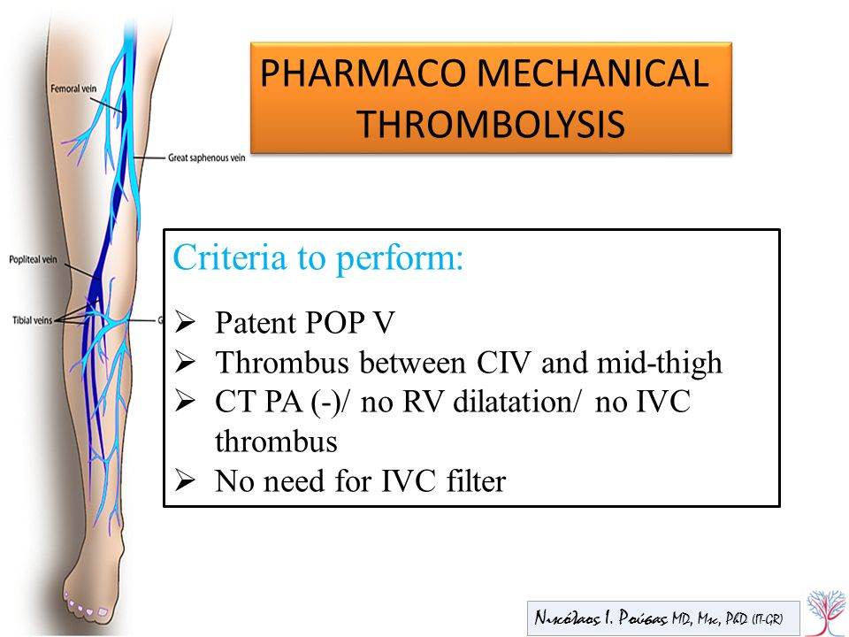 PHARMACO MECHANICAL THROMBOLYSIS Criteria to perform: Patent POP V