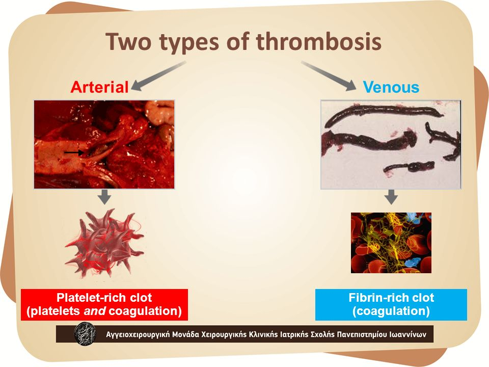 Two types of thrombosis