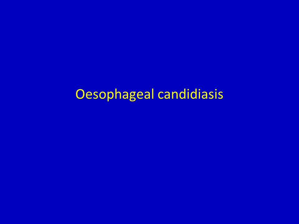 Oesophageal candidiasis