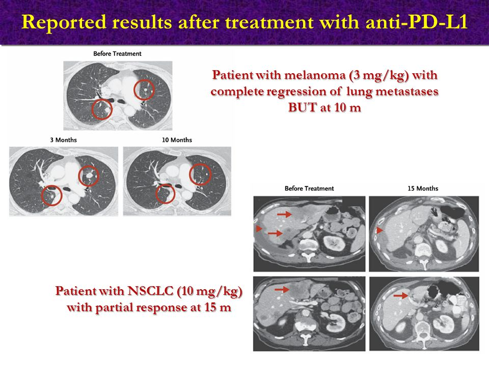 Reported results after treatment with anti-PD-L1