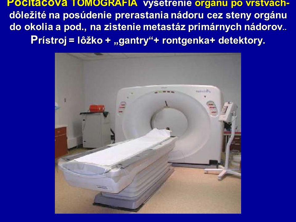 Počítačová TOMOGRAFIA vyšetrenie orgánu po vrstvách- dôležité na posúdenie prerastania nádoru cez steny orgánu do okolia a pod., na zistenie metastáz primárnych nádorov..