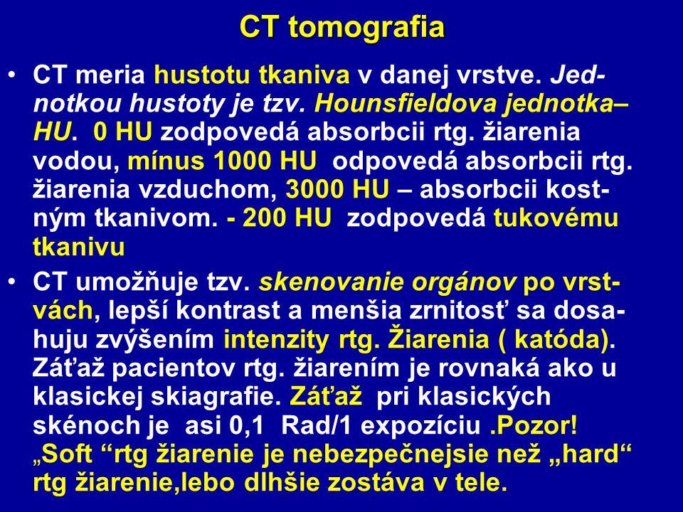 CT tomografia