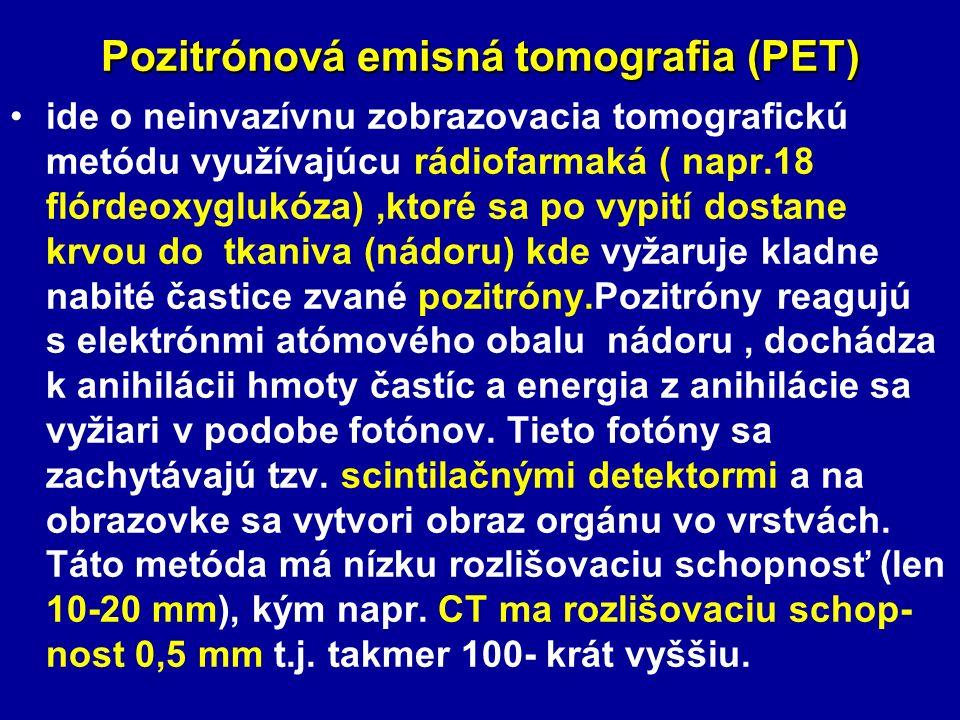 Pozitrónová emisná tomografia (PET)