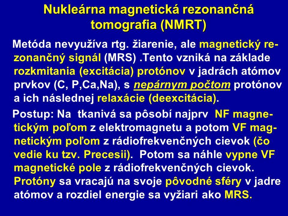 Nukleárna magnetická rezonančná tomografia (NMRT)