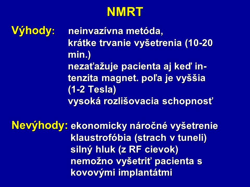 NMRT Výhody: neinvazívna metóda,