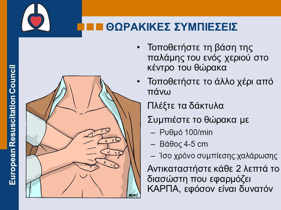 ΘΩΡΑΚΙΚΕΣ ΣΥΜΠΙΕΣΕΙΣ Τοποθετήστε τη βάση της παλάμης του ενός χεριού στο κέντρο του θώρακα. Τοποθετήστε το άλλο χέρι από πάνω.