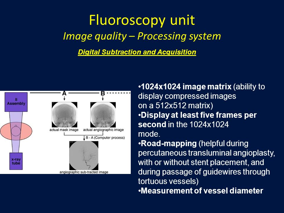 Fluoroscopy unit Image quality – Processing system