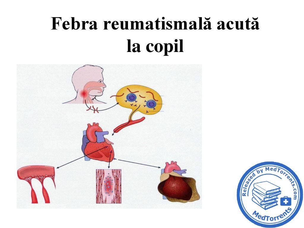 febra reumatismala acuta
