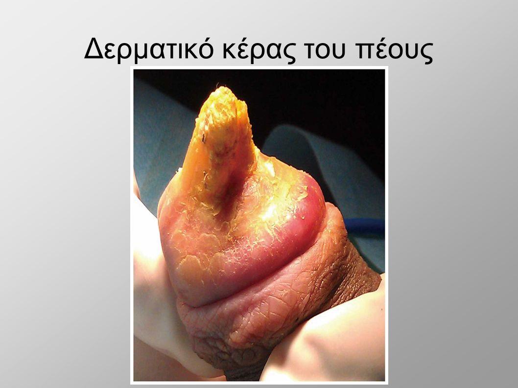 Φωτογραφίες από σκληρά πέη ζάχαρη πατερούλης πορνό βίντεο