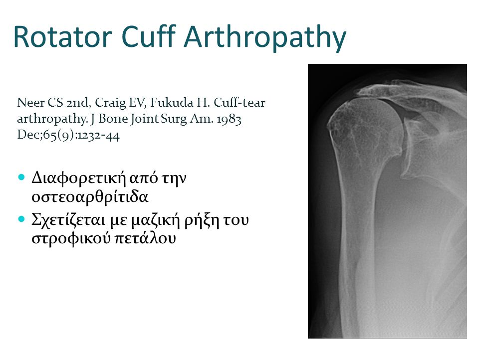 Rotator Cuff Arthropathy