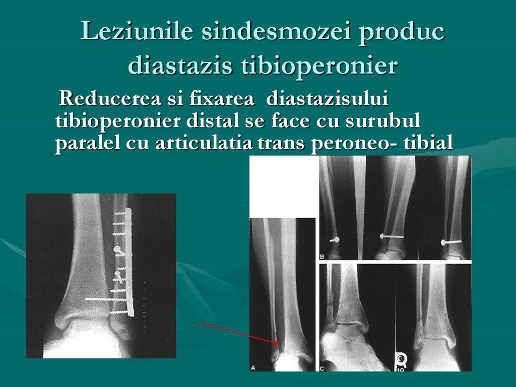 diastazis tibio peronier | Forumul Medical ROmedic