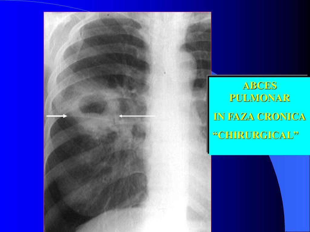 invazia pulmonară