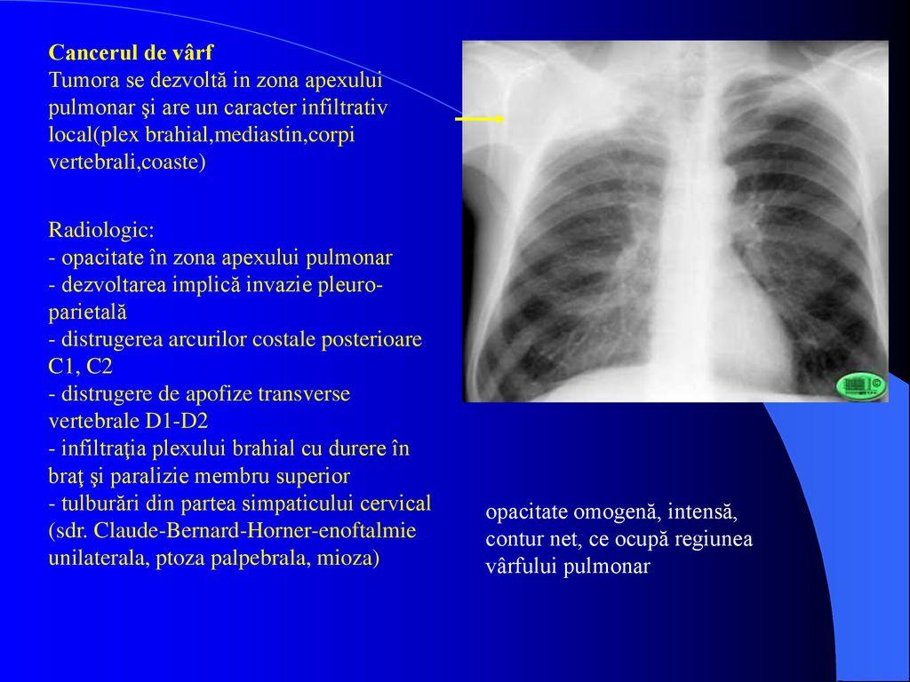 Chirurgia toracica video-asistata (VATS) comparativ cu chirurgia toracica deschisa | filme-indiene.ro