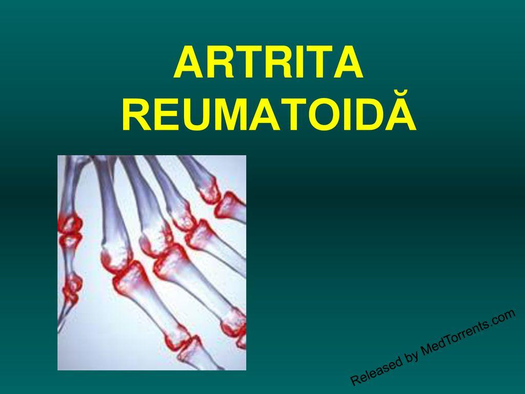 artrita carpului durere la cotul mâinii