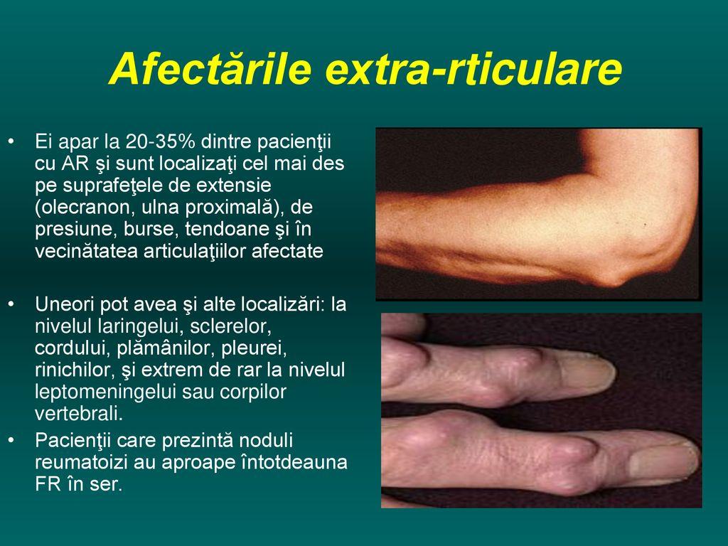 artrita articulațiilor laringelui