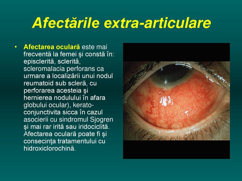 iridociclită și dureri articulare)
