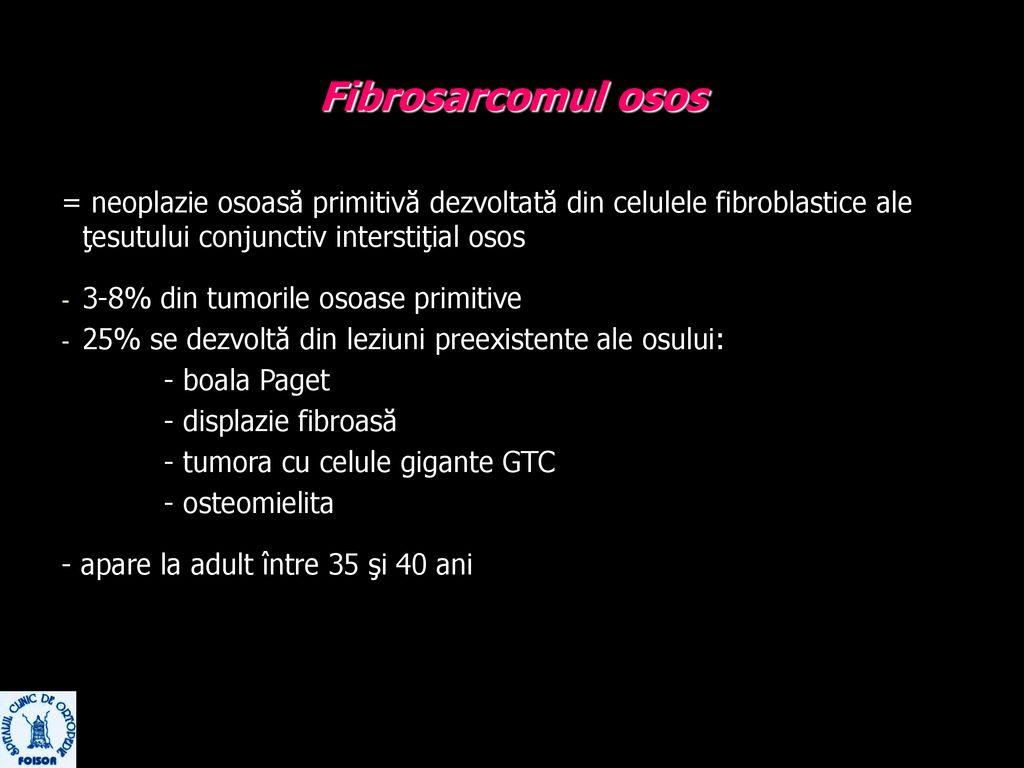 tratament diferențiat al displaziei țesutului conjunctiv înroșirea durerilor articulare